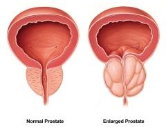 Adenome-prostate.jpg