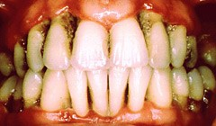 periodontitis.jpg