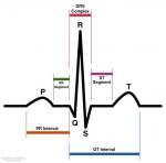 electrocardiogramme.jpg