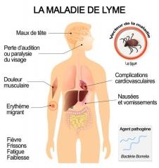 symptomes-et-complications-de-la-maladie-de-Lyme.jpg