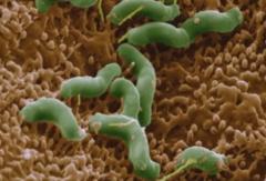 Bacterie-Helicobacter-Pylori.jpg